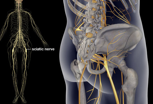 Top 4 Causes of Sciatica 1