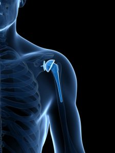Center for spinal disorders- shoulder replacement