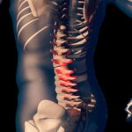 Spine & Back Diseases & Conditions — Center for Spinal Disorders