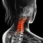Spine & Back Treatments & Surgery — Center for Spinal Disorders