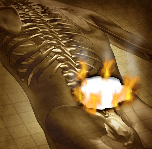 The Painful Effects Of Smoking: Chronic Back Pain