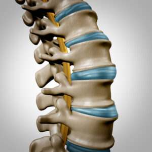 Centinel Spine Clinical Study