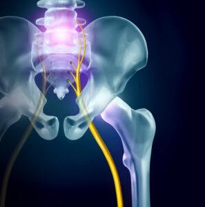 Sciatica Pain During Pregnancy