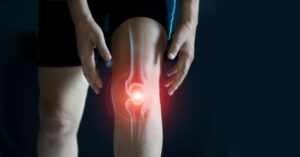 At-Home Treatment for Arthritis Knee Pain