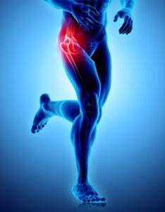 10 Hip Pain Remedies