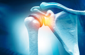 """Recent Physician-led Lecture Focuses on """"Advancements in the Treatment of Rotator Cuff Tears"""""""