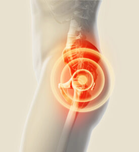 Everything You Need to Know About Hip Pain